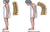 Simbolo osteoporosi