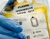 plasma iperimmune
